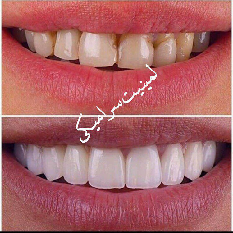 دکتر مهدی علیزاده جراح دندانپزشک ایمپلنت ارتودنسی لمینت در مشهد